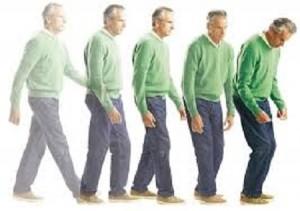 Morbo di Parkinson: ecco i sintomi che lo segnalano fino a 10 anni prima