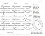 Il meccanismo focale della scossa di terremoto avvenuta 2 notti fa di intensità pari a 2.0 - Si tratta di un sisma di tipo distensivo