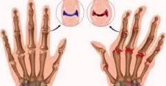 msm articolazioni muscoli