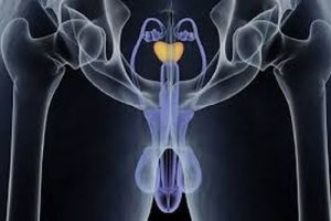 Ginnastica prostatite su Bubnovsky - Laserterapia magnetica sulla prostata